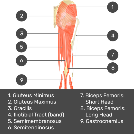 Test yourself image 6, posterior view of thigh and gluteal region, gluteus medius removed so can see gluteus minimus. Muscles and structures labelled- gluteus minimus, gluteus maximus, gracilis, iliotibial tract (band), semimembranosus, semitendinosus, biceps femoris: short head, biceps femoris: long head, gastrocnemius.