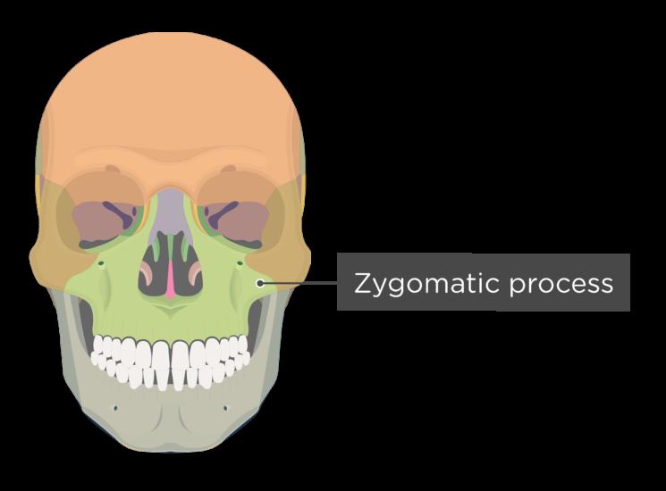 skull - anterior view - zygomatic process maxilla - divisions
