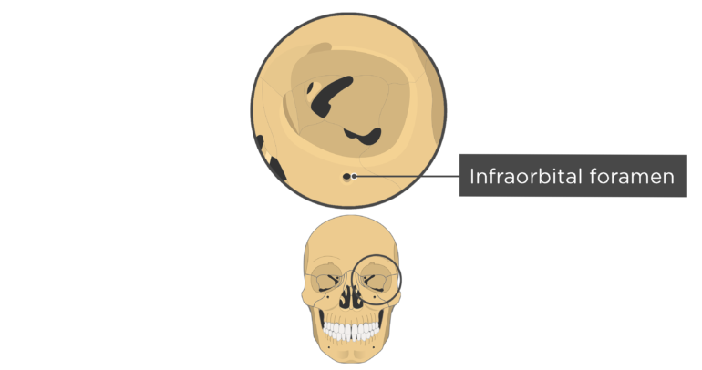 Labelled image of the infraorbital foramen of the skull