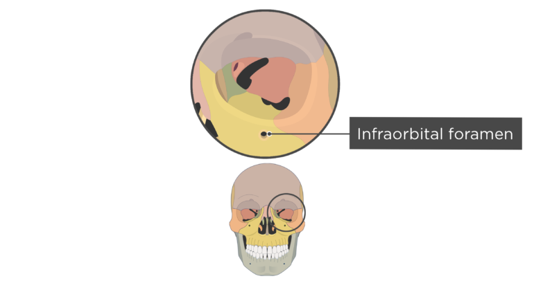 Labelled image of the infraobrital foramen of the skull with divisions shown