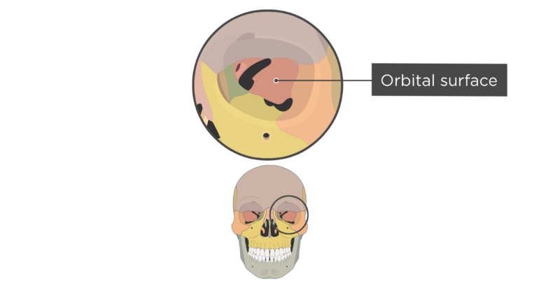 skull bones markings - orbital view - orbital surface - sphenoid bone - divisions