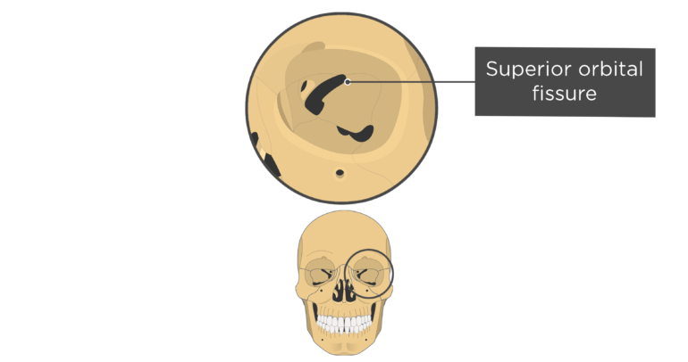 skull bones markings - orbital view - superior orbital fissure