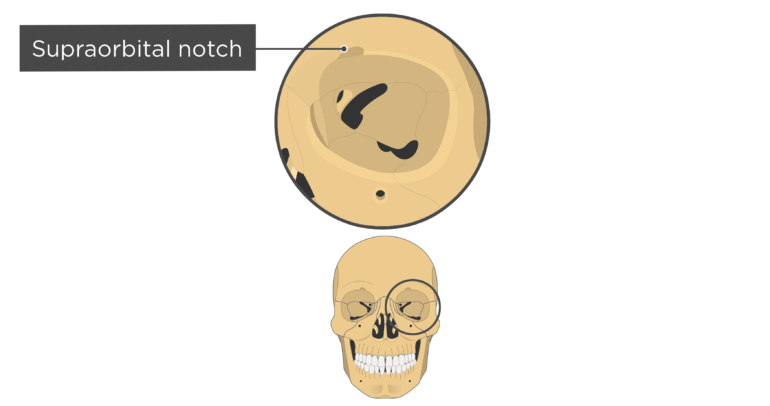 skull bones markings - orbital view - supraorbital notch