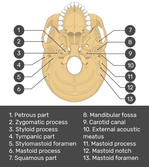 skull markings - inferior view- temporal bone - test yourself - answers