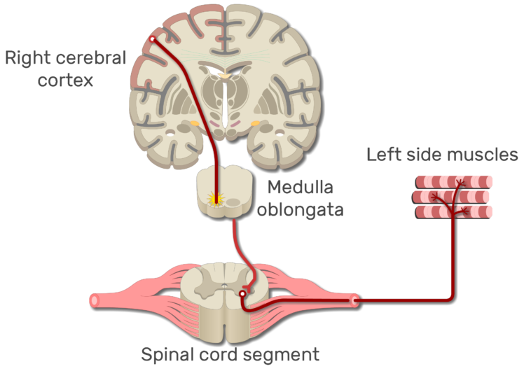 An image showing the action potential moving from the right cerebral cortex to left side muscles through the spinal cord
