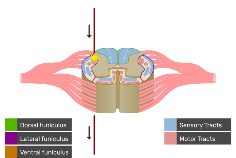 An image showing the motor tract action potential movement, Motor Tracts, Sensory Tracts, Ventral funiculus, Lateral funiculus and Dorsal funiculus inside the spinal cord segment