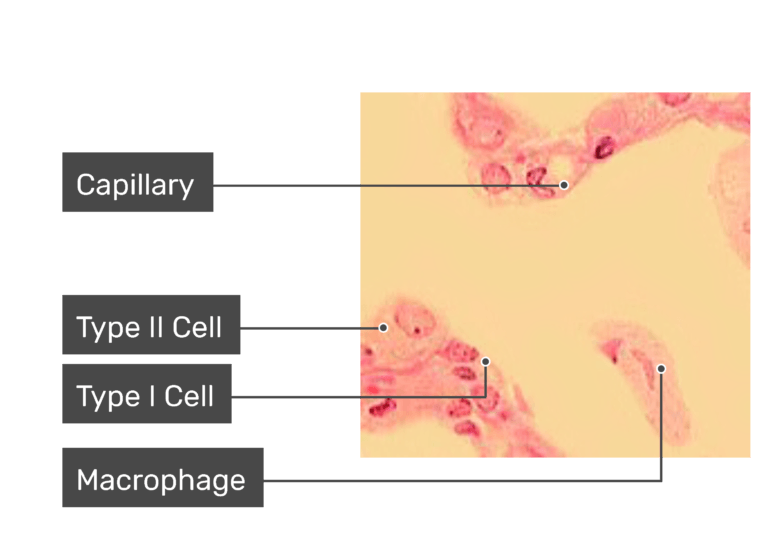 Microscope slide demonstrating the capillary, type 1 cell, type 2 cell and macrophage