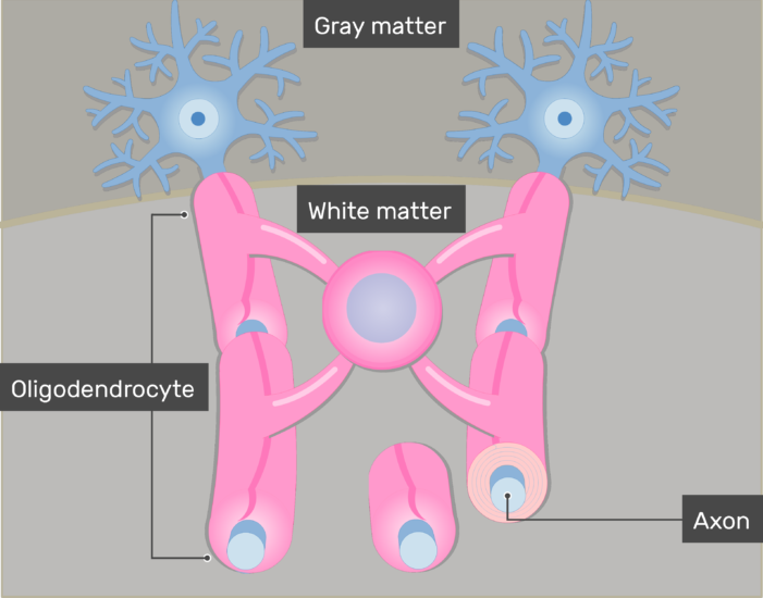 An image showing the Oligodendrocytes giving branches to neurons axons through its Cytoplasmic processes in the white matter