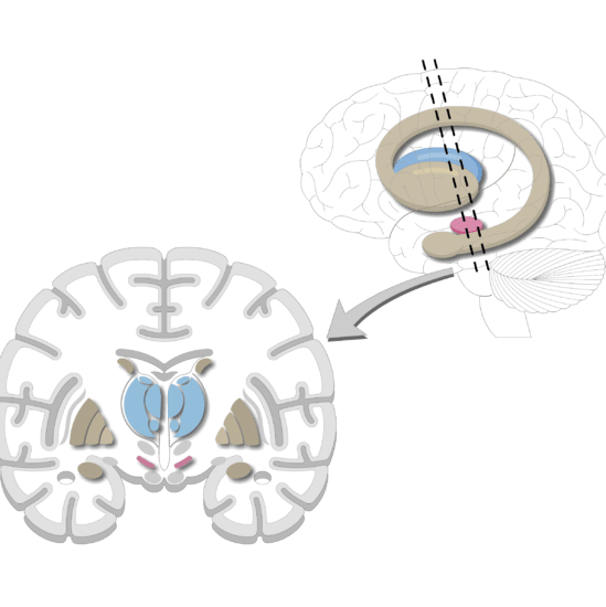 An image showing the Basal Nuclei, lateral view and coronal section of the brain