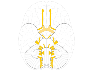 An inferior view of the brain showing the cranial nerves