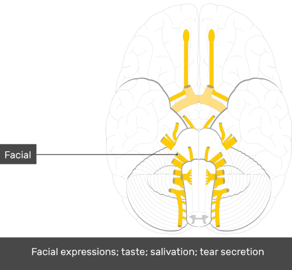 An inferior view of the brain showing the cranial nerves (Facial nerve is labeled)
