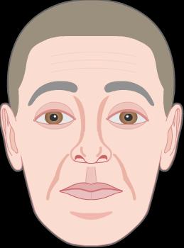 raising eyebrows wrinkles by frontalis muscle 2