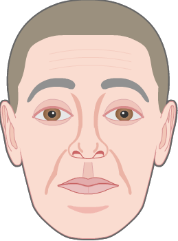 raising eyebrows wrinkles by frontalis muscle 3