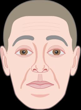 raising eyebrows wrinkles by frontalis muscle 4