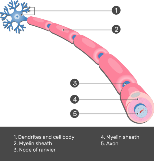 An image showing an axon of a neuron Myelinated by Schwann Cells forming Nodes of ranvier, (Node of ranvier, Dendrites and cell body, Myelin sheath, Myelin sheath, Axon) are numbered and answered below