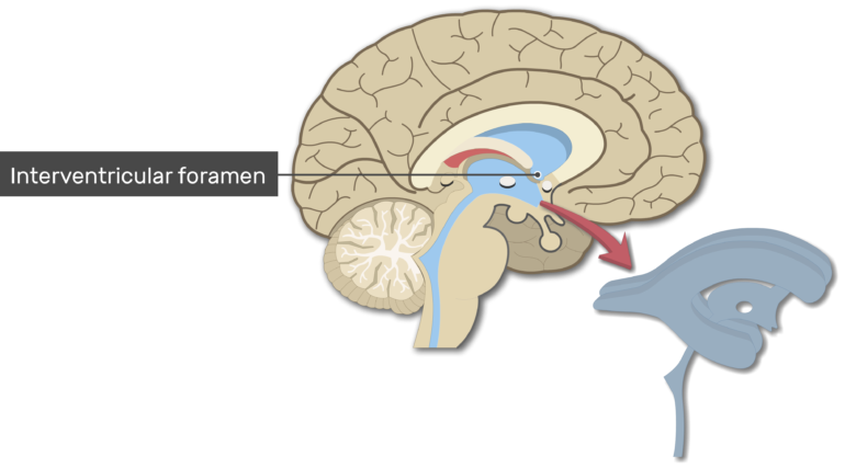 An image showing the Interventricular foramen in Midsagittal view of the brain