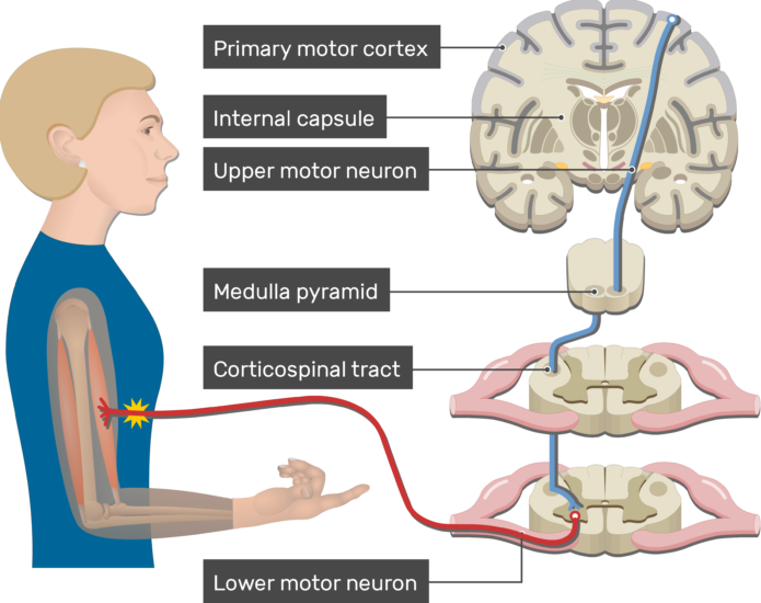 An image showing action potential moving through the lower motor neuron, Pyramidal Tract Pathway (Internal capsule, Corticospinal tract, Medulla pyramid, Primary motor cortex, Upper motor neuron, Lower motor neuron)