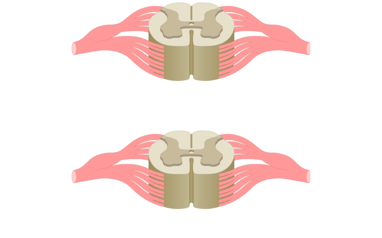 Cross section of the spinal cord showing 2 lumbar segments, gray matter, white matter and spinal nerve