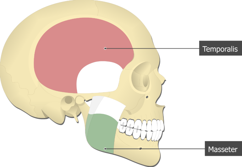 Masseter Muscle attached to the skull with other muscles