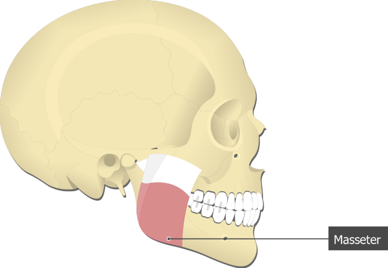 Masseter Muscle attached to the skull alone