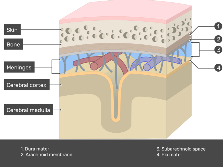 Cross-section of meninges showing Dura and Pia mater, Arachnoid membrane and Subarachnoid space in addition to skin, bone, Cerebral cortex and Cerebral medulla