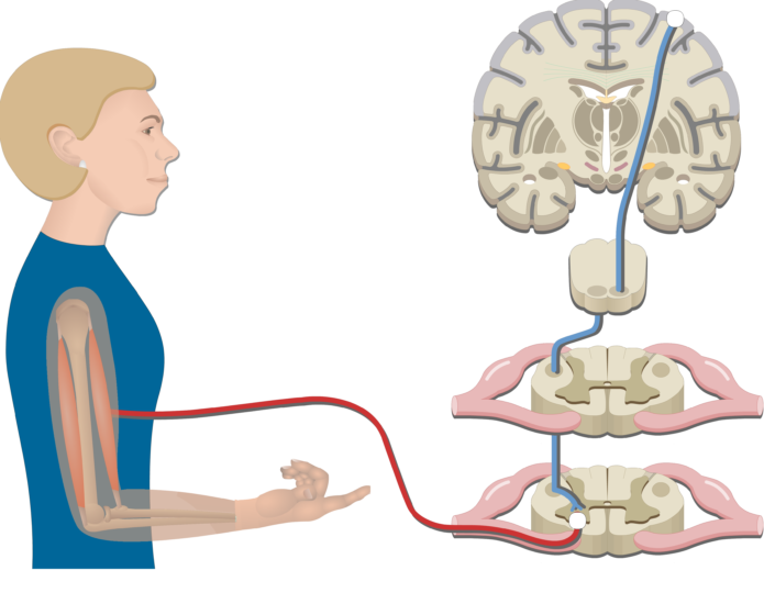 An image showing the muscle response, the action potential passed the pathway, Pyramidal Tract Pathway (Internal capsule, Corticospinal tract, Medulla pyramid, Primary motor cortex, Upper motor neuron, Lower motor neuron)