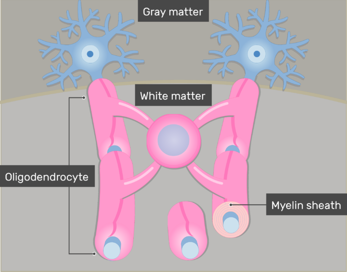 An image showing the Myelin sheath in addition to Oligodendrocytes giving branches to neurons axons through its Cytoplasmic processes in the white matter