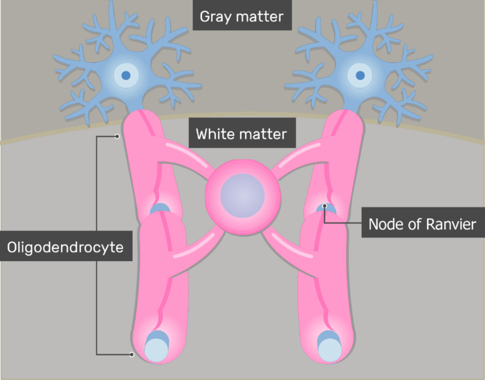 An image showing the Node of Ranvier in addition to Oligodendrocytes giving branches to neurons axons through its Cytoplasmic processes in the white matter