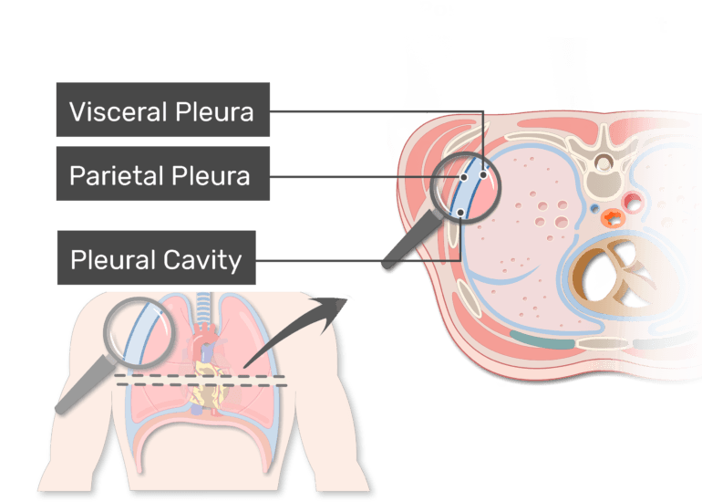 The pleural cavity labeled