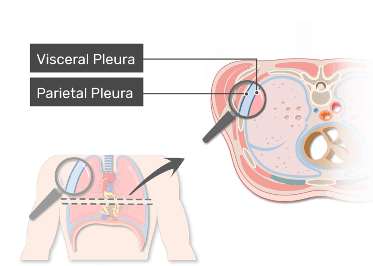The parietal pleura labeled in a magnified the pleura