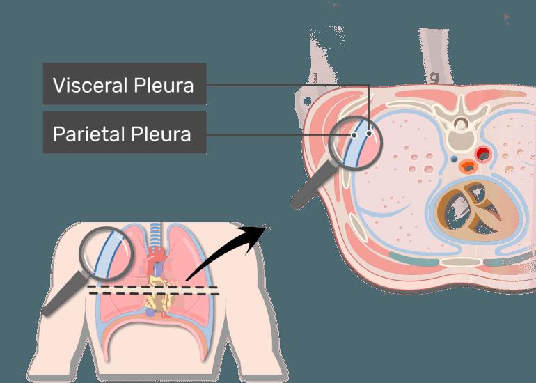 The parietal pleura labeled in a magnified the pleura