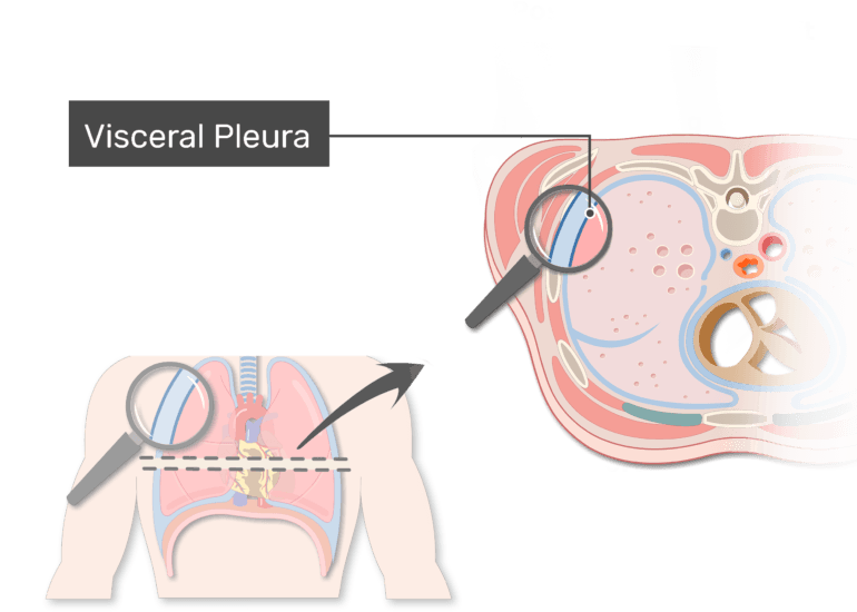 The visceral pleura labeled in a magnified the pleura