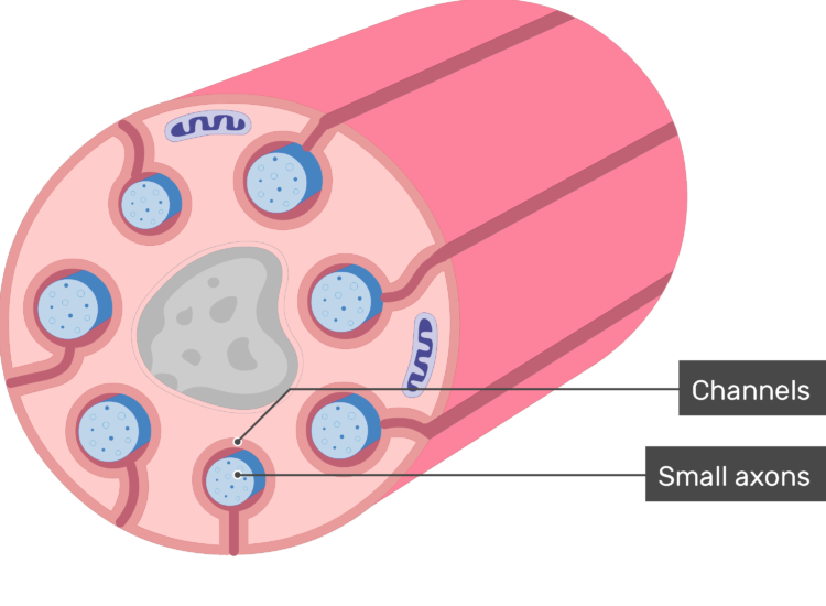 An image showing schwann cell containing several small-diameter axons and labels for channels and small axons