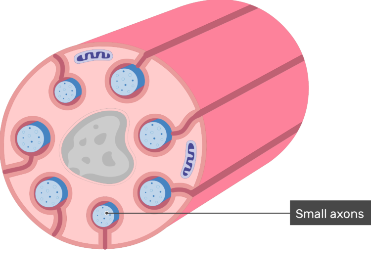 An image showing schwann cell containing several small-diameter axons