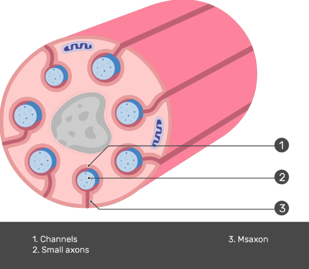 An image showing schwann cell containing several small-diameter axons, channels, mesaxons and small axons are numbered and labeled showing the answers