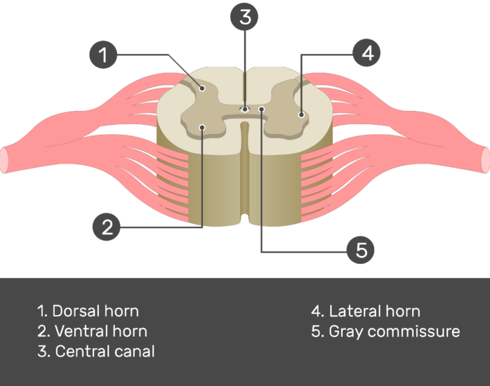 An image showing the 1. Dorsal horn 2. Ventral horn 3. Central canal 4. Lateral horn 5. Gray commissure labeled and answered below, gray matter of a spinal cord segment