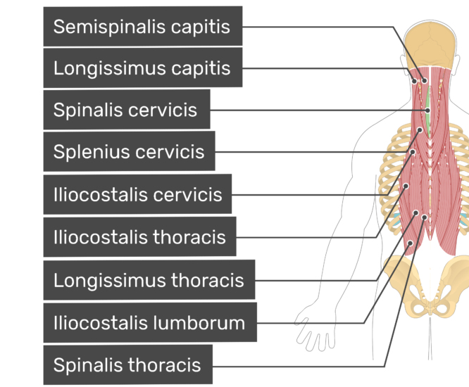Labelled image of the semispinalis capitis, longissimus capitis, spinalis cervicis, splenius cervicis, iliocostalis cervicis, iliocostalis thoracis, longissimus thoracis, iliocostalis lumborum, and spinalis thoracis muscles