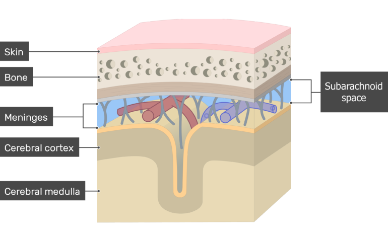 Cross-section of the meninges showing the Subarachnoid space in addition to Skin, Bone, Cerebral cortex, Cerebral medulla layers