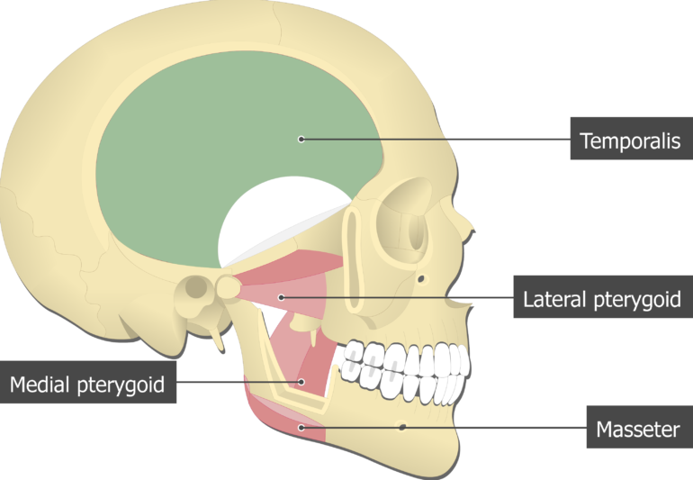 Temporalis Muscle attached to the skull with other mastication muscles