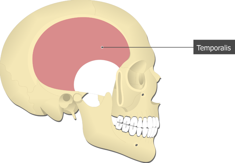 Temporalis Muscle attached to the skull alone