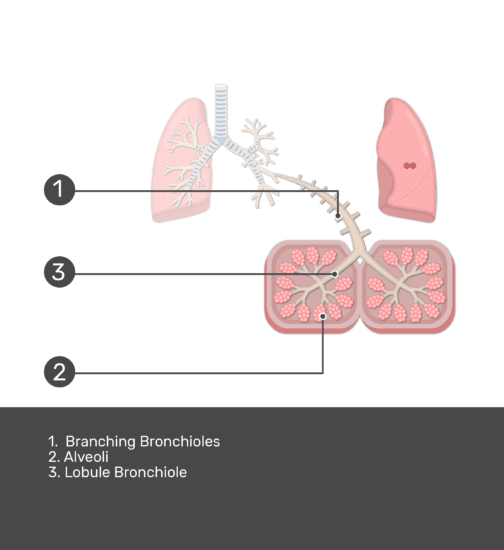 Zoom in of pulmonary lobule with answers shown