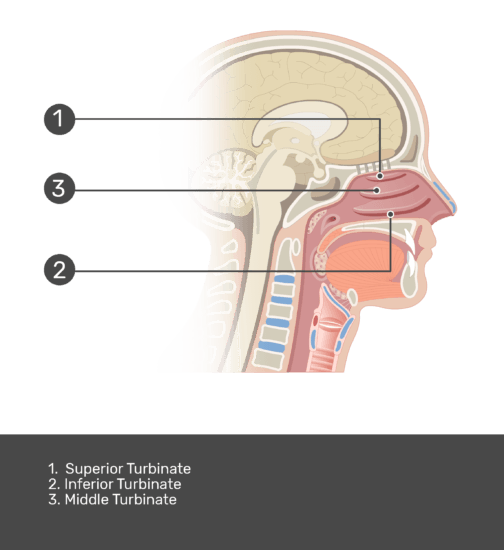 Midsagittal view of turbinates with answers shown