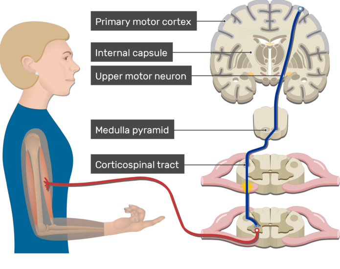 An image showing action potential moving through the upper motor neuron, Pyramidal Tract Pathway (Internal capsule, Corticospinal tract, Medulla pyramid, Primary motor cortex, Upper motor neuron, Lower motor neuron)