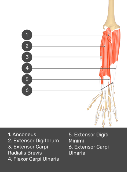A test yourself image of the dorsal view of the forearm showing the bony elements and the deeper muscles. The visible muscles of the forearm are numbered 1-6. The answers in the box below are as follows 1. Anconeus 2. Extensor Digitorum 3. Extensor Carpi Radialis Brevis 4. Flexor Carpi Ulnaris 5. Extensor Digiti Minimi 6. Extensor Carpi Ulnaris.