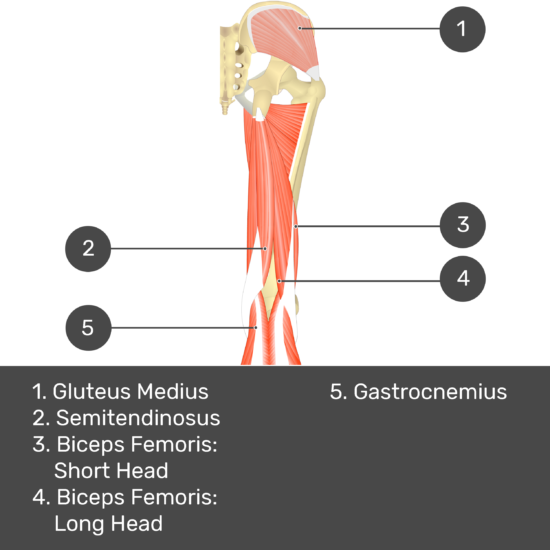 Test yourself image 8, posterior view of thigh and gluteal region. Muscles and structures labelled- gluteus medium, semitendinosus, biceps femoris: short head, biceps femoris: long head, gastrocnemius.