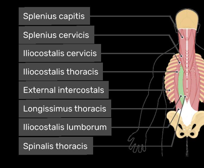 Labelled image of the splenius capitis, splenius cervicis, iliocostalis cervicis, iliocostalis thoracis, external intercostals, longissimus thoracis, iliocostalis lumborum, and spinalis thoracis muscles