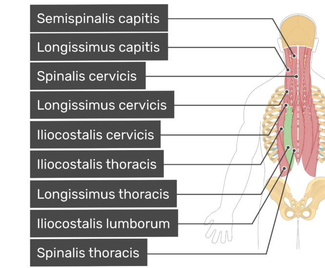 Labelledd image of the semispinalis capitis, longissimus capitis, spinalis cervicis, longissimus cervicis, iliocostalis cervicis, iliocostalis thoracis, longissimus thoracis, iliocostalis lumborum, and spinalis thoracis muscles