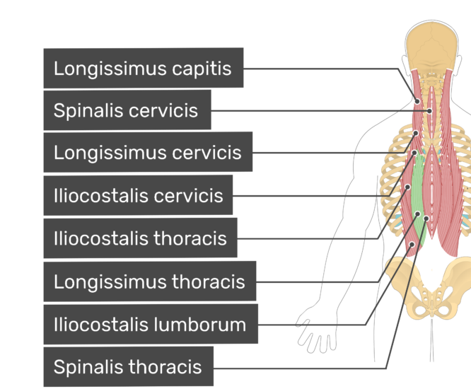 Labelled image of the longissimus capitis, spinalis cervicis, longissimus cervicis, iliocostalis cervicis, iliocostalis thoracis, longissimus thoracis, iliocostalis lumborum, and spinalis thoracis muscles