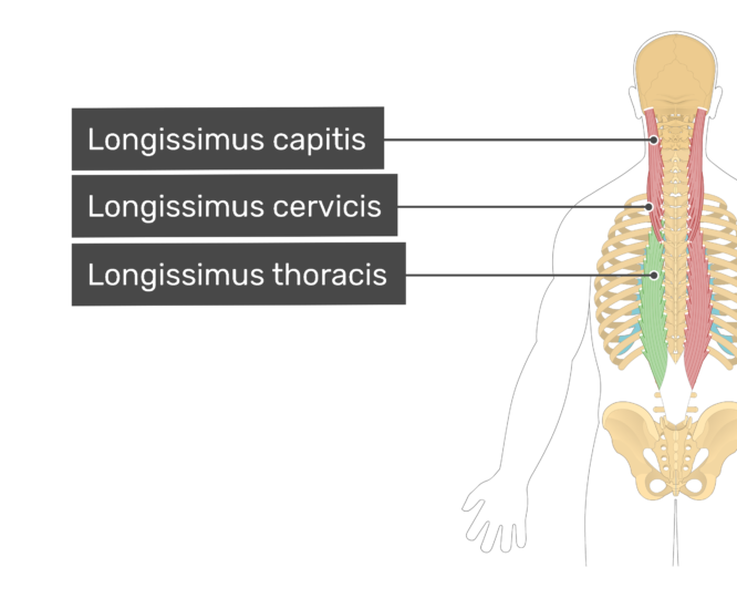 Labelled image of the longissimus capitis, longissimus cervicis, and longissimus thoracis muscles