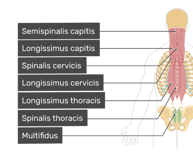 Labelled image of the semispinalis capitis, longissimus capitis, spinalis cervicis, longissimus cervicis, longissimus thoracis, spinalis thoracis, and multifidus muscles